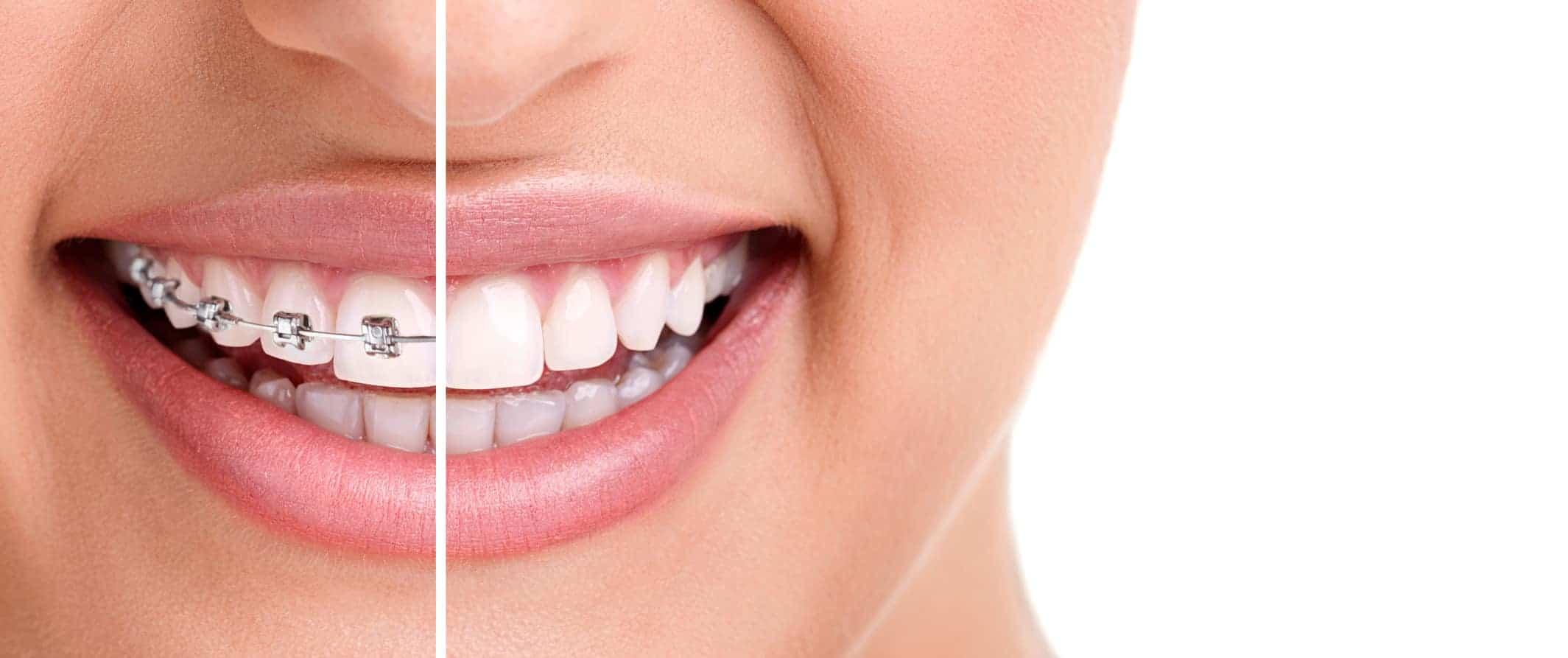 Tipos de ortodoncia - Clínica Dental en Valencia Benimaclet ARTDENTA