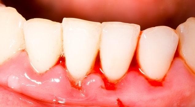 Causas de las encías sangrantes - Clínica Dental en Valencia Benimaclet ARTDENTA