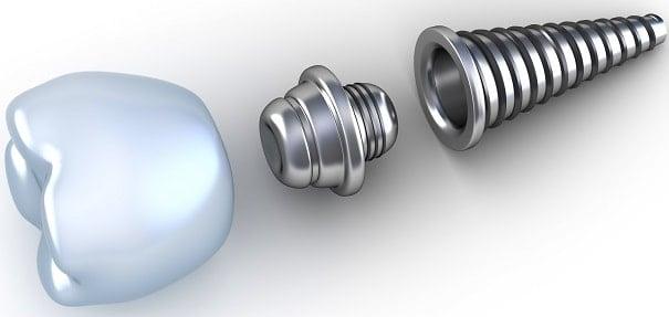 Los mitos de los implantes dentales - Clínica Dental en Valencia ARTDENTA