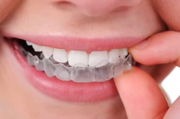 Tratamiento Invisalign - Clínica Dental en Valencia Benimaclet