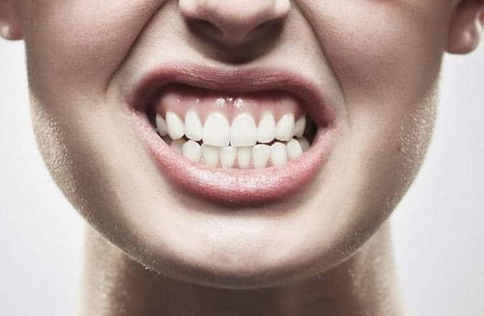 Bruxismo - Clínica Dental en Valencia Benimaclet ARTDENTA