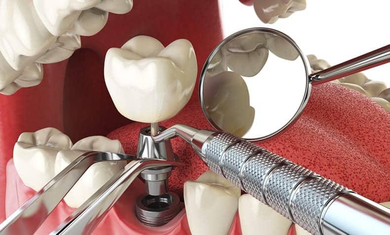 Implantes Dentales - Clínica Dental en Valencia Benimaclet