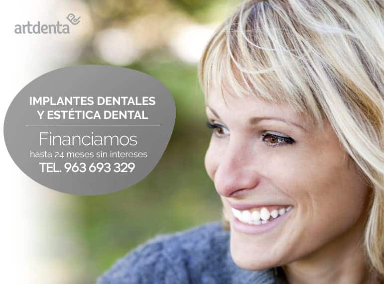 banner-promo-implantes-dentales