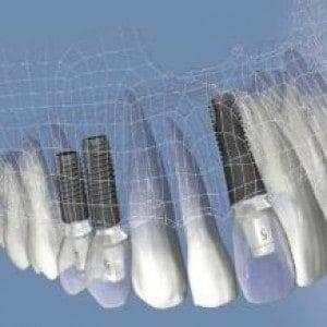 implante3d