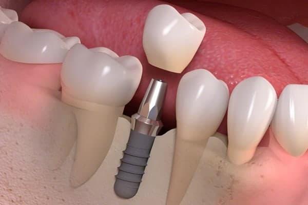 Cuidados Implante dental - Clínica Dental en Valencia Benimaclet