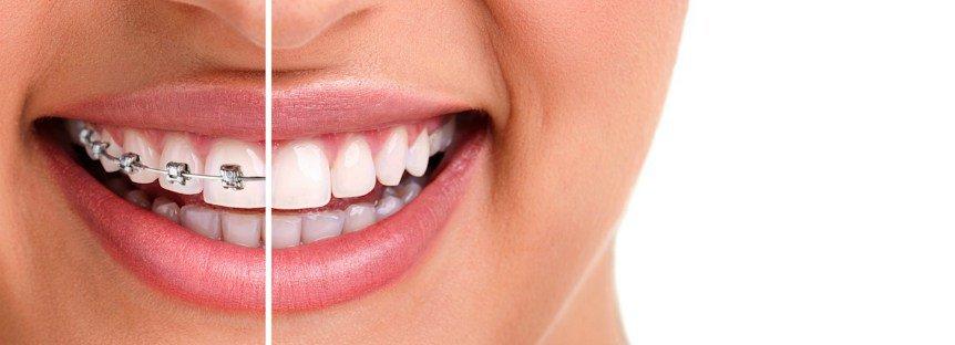 ortodoncia-brackets-invisible
