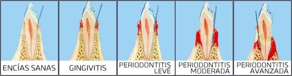 Fases de la Periodoncitis | Artdenta Clinica Valencia