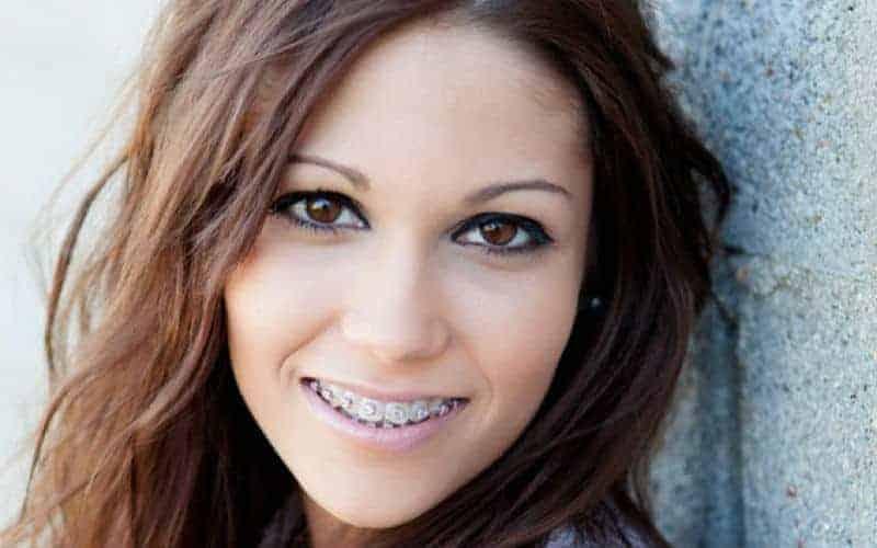 Ortodoncia estética - Clínica Dental en Valencia Benimaclet
