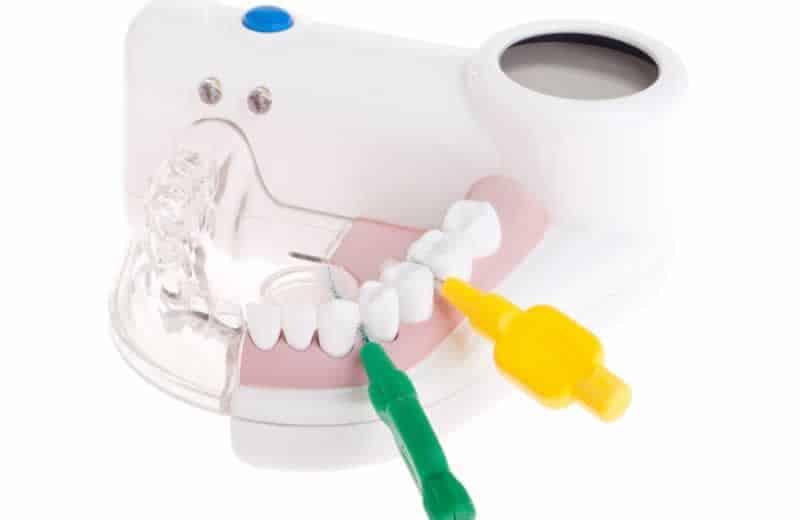 Periodontitis Ardenta Dental Valencia