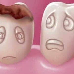 Dolor de muelas - Caries