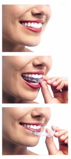 Como colocarse la Ortodoncia Invisible Invisalign