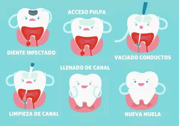 Fases del tratamiento de Endodoncia - Clínica Dental en Valencia Benimaclet