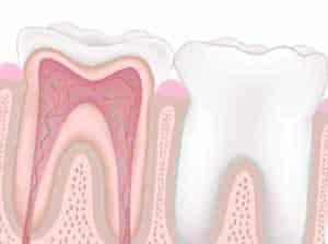 Que significa Endodoncia - Clínica Dental en Valencia Benimaclet ARTDENTA