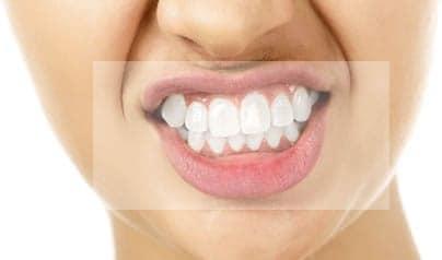 Resultados Ortodoncia Invisble Invisalign