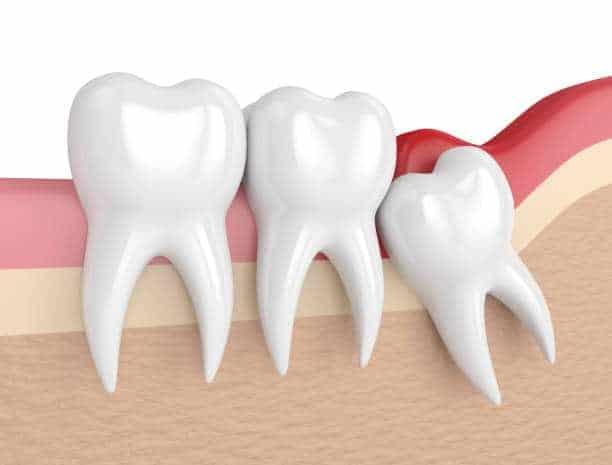 Dientes Apiñados - Clínica Dental Artdenta