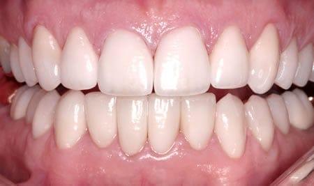 Dientes Pulidos - Clínica dental Artdenta