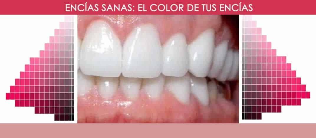 Encías sanas || Color de las encías