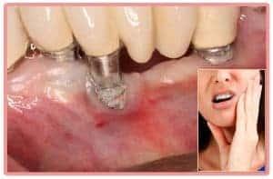 Mala cicatrización implante