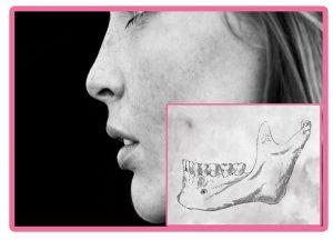 Tamaño de hueso para implantes