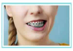 10 mitos sobre brackets
