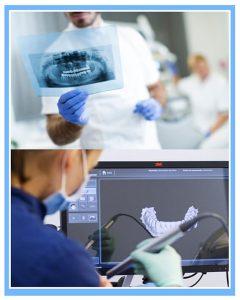Método tradicional o moderno carillas dentales