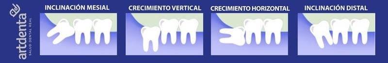 Tipos de anomalías en Muelas del Juicio   Clínica Dental en Valencia Artdenta