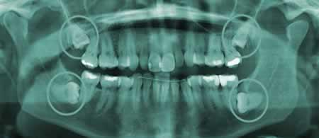 Radiografía Muelas del Juicio   Clínica Dental en Valencia ARTDENTA